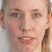 Unreine Haut vorher